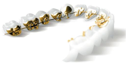 servicii-orodent-ortodontie
